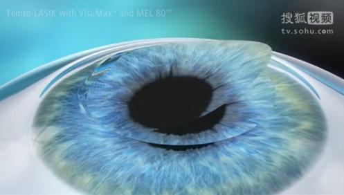 飞秒激光治疗近视三维视频