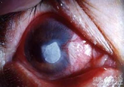 慢性角膜炎会传染吗