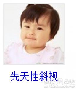 儿童头面受伤后间歇性斜视能治愈吗